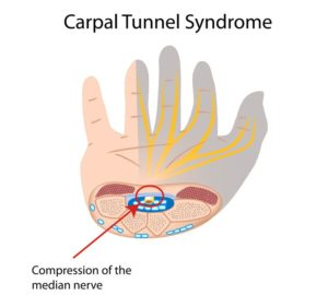 syndrome tunnel carpien
